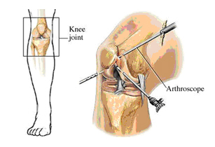 Ligament injury,ankle ligament injury, knee ligament injury, shoulder ligament injury, wrist ligament injury,ligament tear,ligaments, sports ligament injury,ligament injury surgery, cruciate ligament injury, ligament injury delhi,ligament injuries india,ligament arthoscopy injury,meniscal ligament injury,acl ligament injury, pcl ligament injury, athelete ligament injury, cricket ligamnet inury, ligament sugeon,ligamnet injury clinic, ligament injury,two ligament injuries